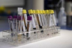 Free Phlebotomy Training in Virginia Beach, VA